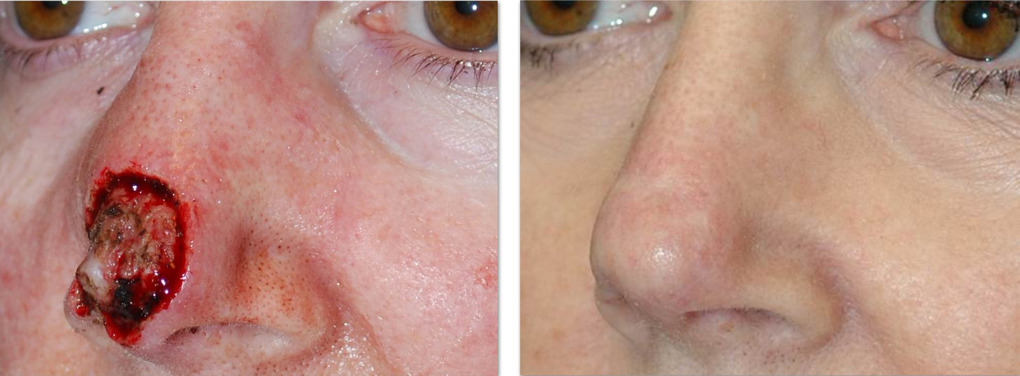 Nasal Reconstruction For Skin Cancer Patients In Seattle Sattler Plastic Surgery Seattle