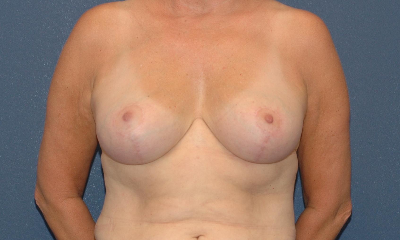 Reduction outpatient procedure breast