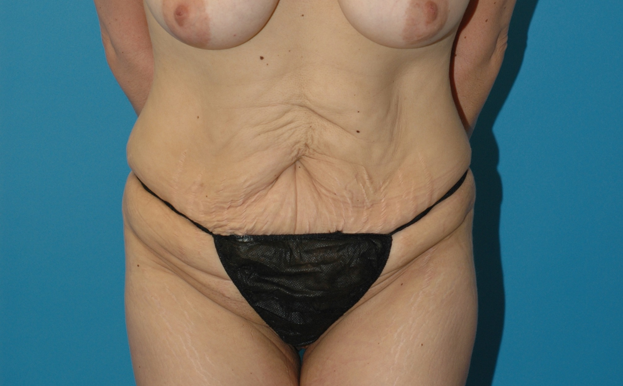 When Can I Resume Having Sex After Tummy Tuck