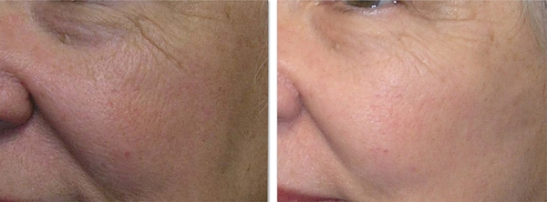fat transfer for facial volume